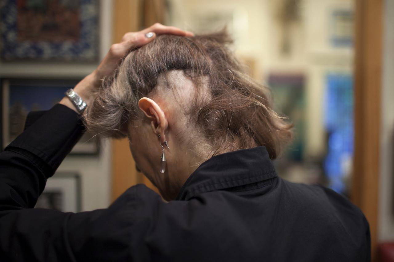 Sandra Bettinger shows a bald patch, as a result of hair loss related to Lupus. (Photo by Tara Israel)