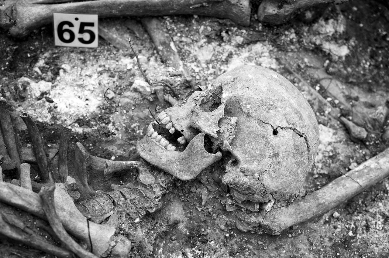 The skull from one of the recovered bodies reveals the manner of death: execution by a close-range shot to the temple.