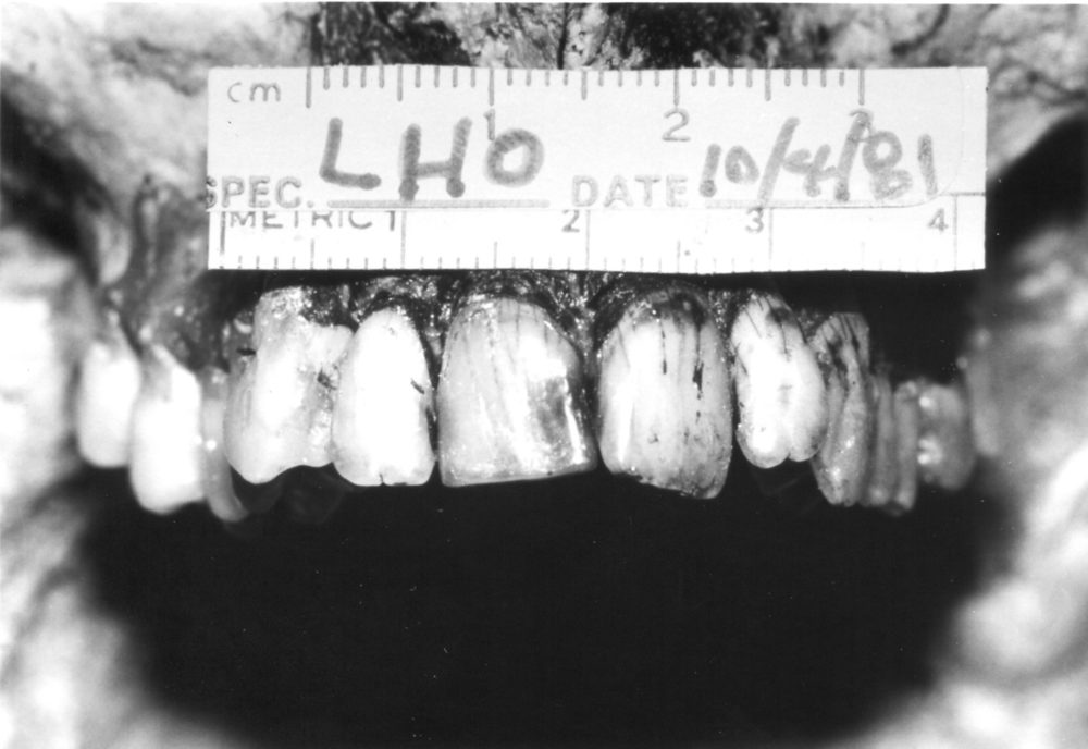 Unique dental traits helped to identify the corpse as Oswald's and not a Soviet agent. (Image courtesy Di Maio Collection)