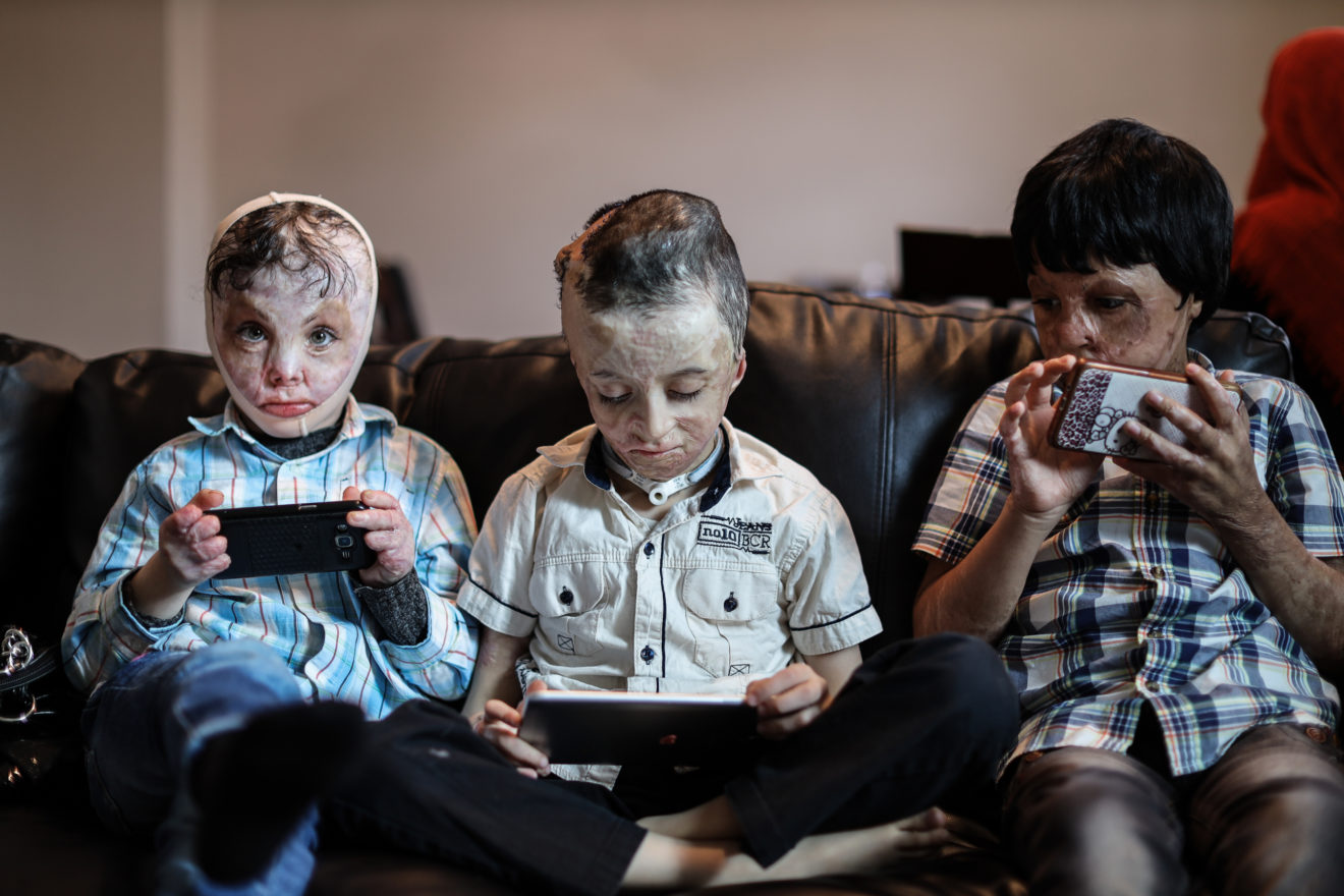 Three Syrian boys—Anwar Almaddad, 7, Yazen Al Khalid, 8, and Abdullah Al Ahmad, 9—play on their tablets and phones at their apartment in Galveston, Texas. The boys are all being treated for their burns at the nearby Shriners Hospitals for Children.