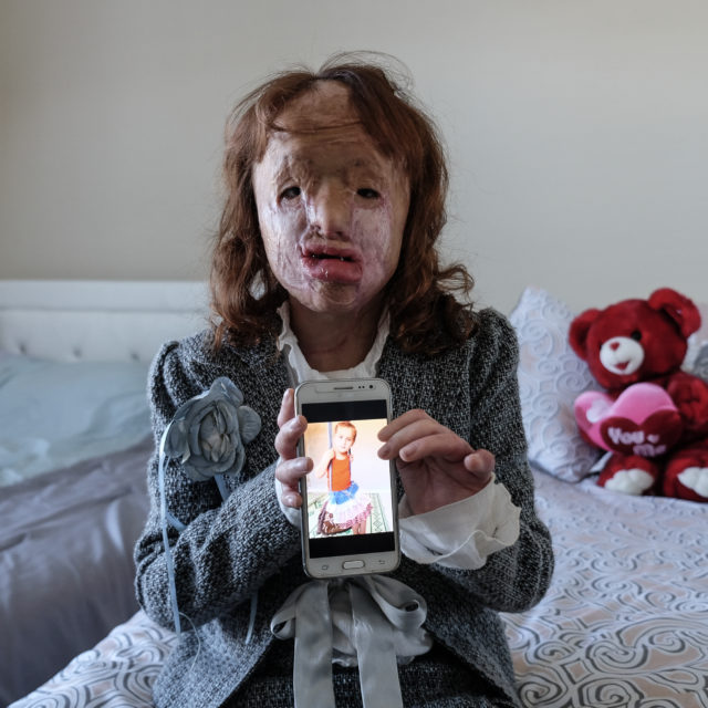 Aysha shows a photo of herself from before she was injured in a missile attack.